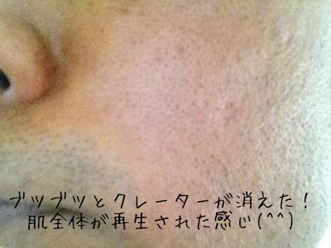 夫のニキビ痕アフター.jpg
