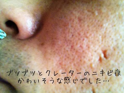 夫のニキビ痕ビフォー.jpg